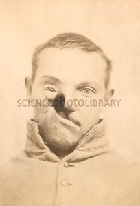 Mercury poisoning deformity. Severe facial deformity in the case of US soldier Carleton Burgan (1844-1915). Burgan was serving with Union forces (Maryland's Purnell Legion) during the US Civil War, when he was treated in August 1862 for pneumonia. The mercury-based drug used was calomel. An ulcer developed on the tongue that spread and destroyed his upper mouth, palate, right cheek and right eye. The cheekbone was removed to prevent further spread of the 'mercurial gangrene'. In 1865, Burgan's face was reconstructed in pioneering work by US plastic surgeon Gurdon Buck (1807-1877). For the reconstruction, see C011/4360.